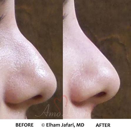 Nonsurgical Nose Job