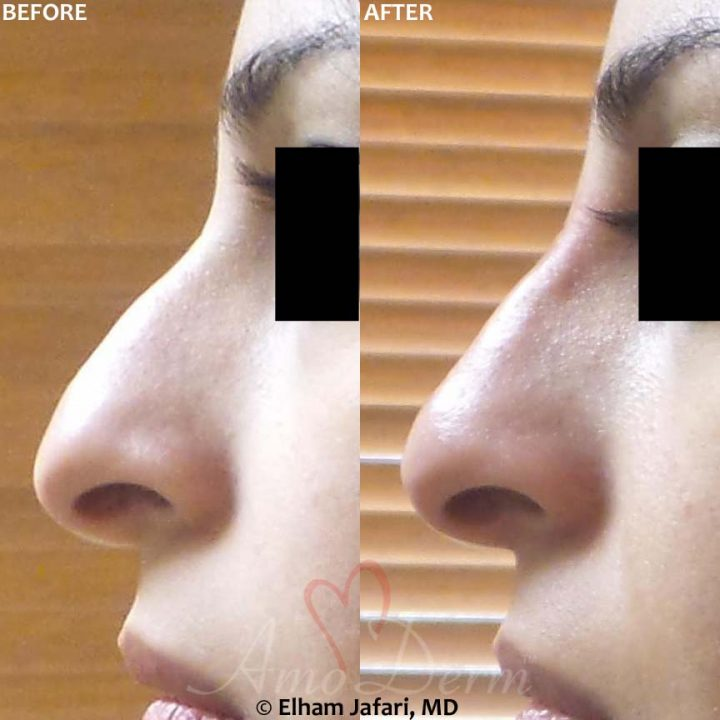 Nonsurgical Nose Job T