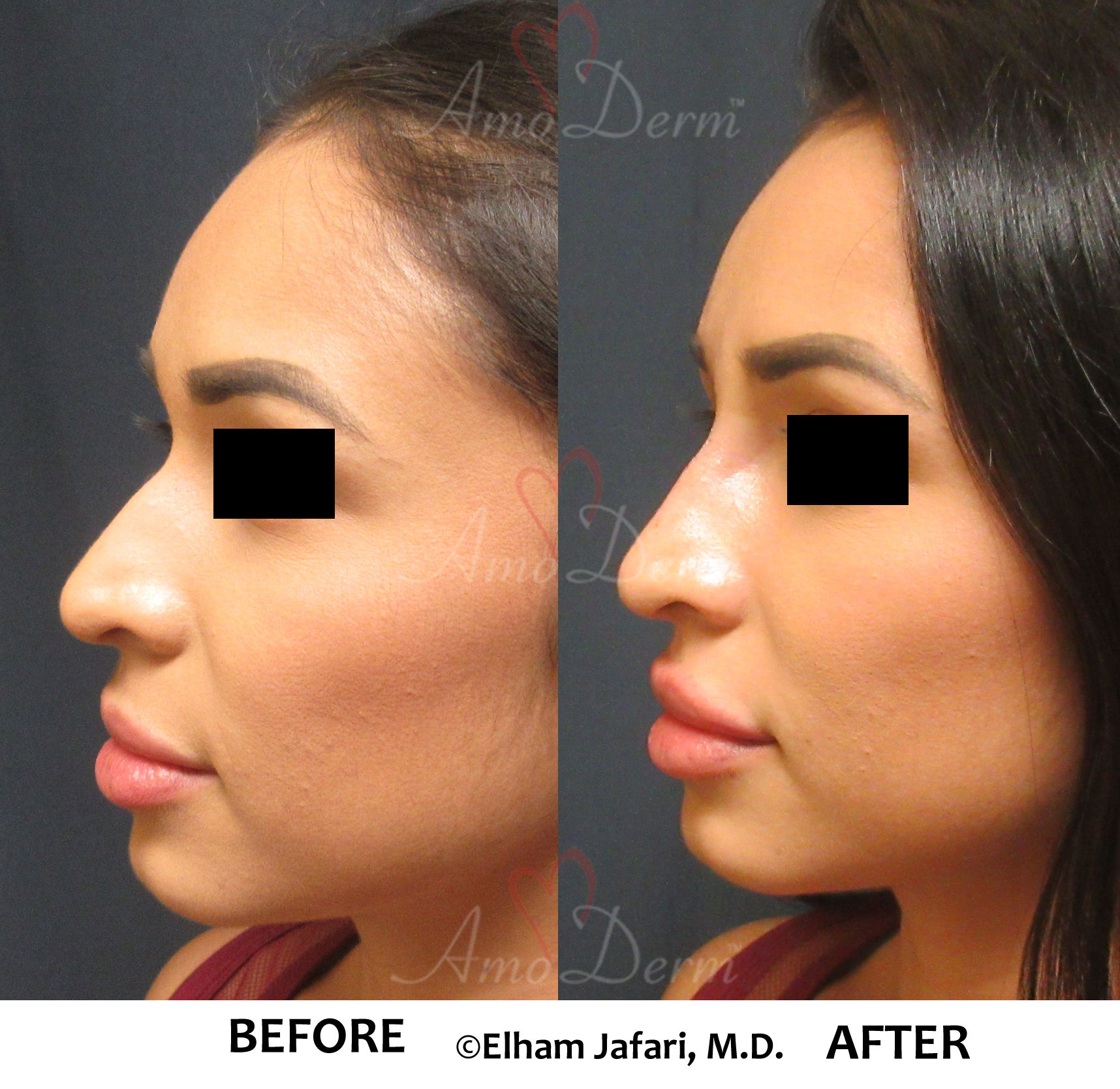 nonsurgical nose job - Amoderm : Before & After Gallery