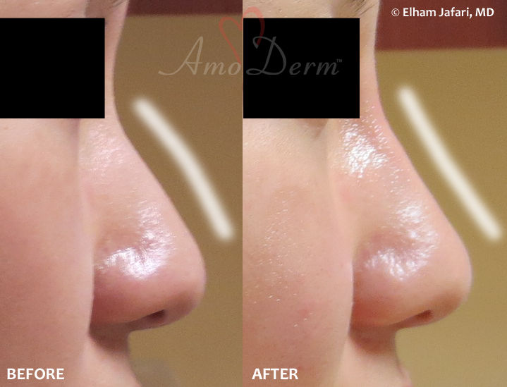 Amoderm : Nonsurgical Nose Job Before & After Gallery