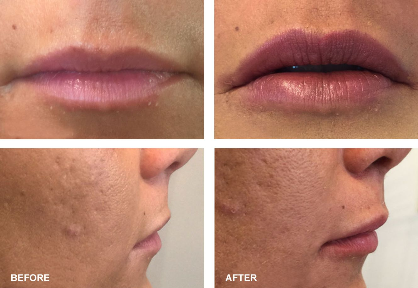 Amoderm : PDO Threading & Lip Augmentation Before & After Gallery