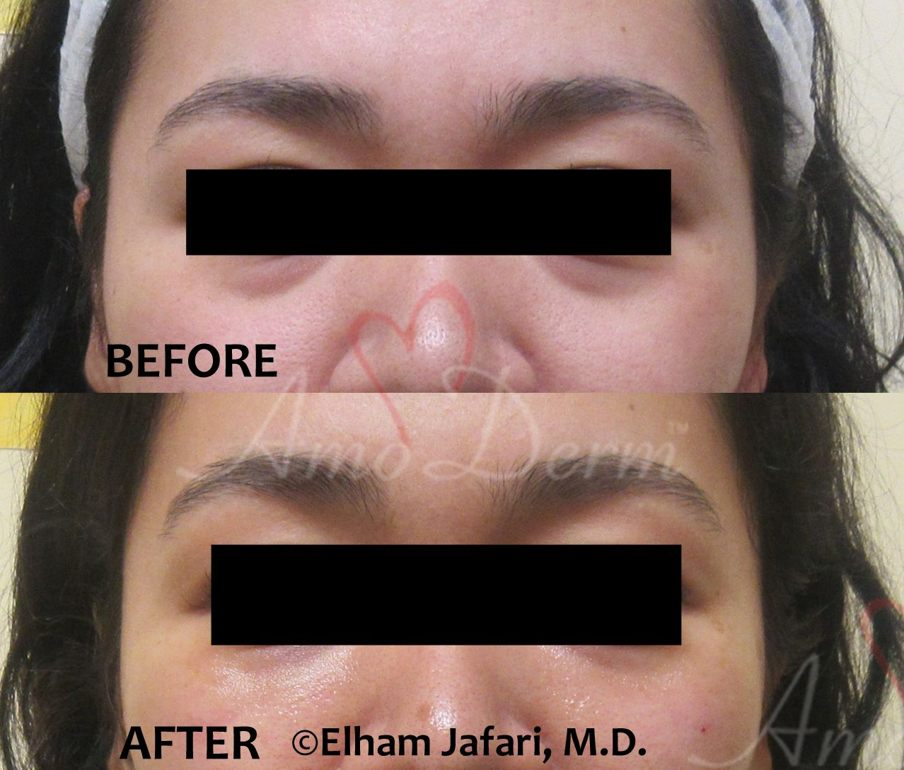 Restylane Under Eyes - Amoderm Cosmetic Treatments