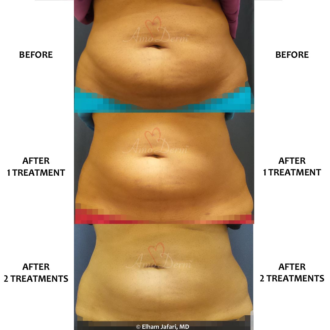 SculpSure - Before & After Gallery Real Results at Amoderm