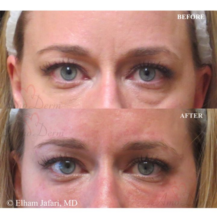 Under Eyes Treatments Amoderm : Before & After Gallery