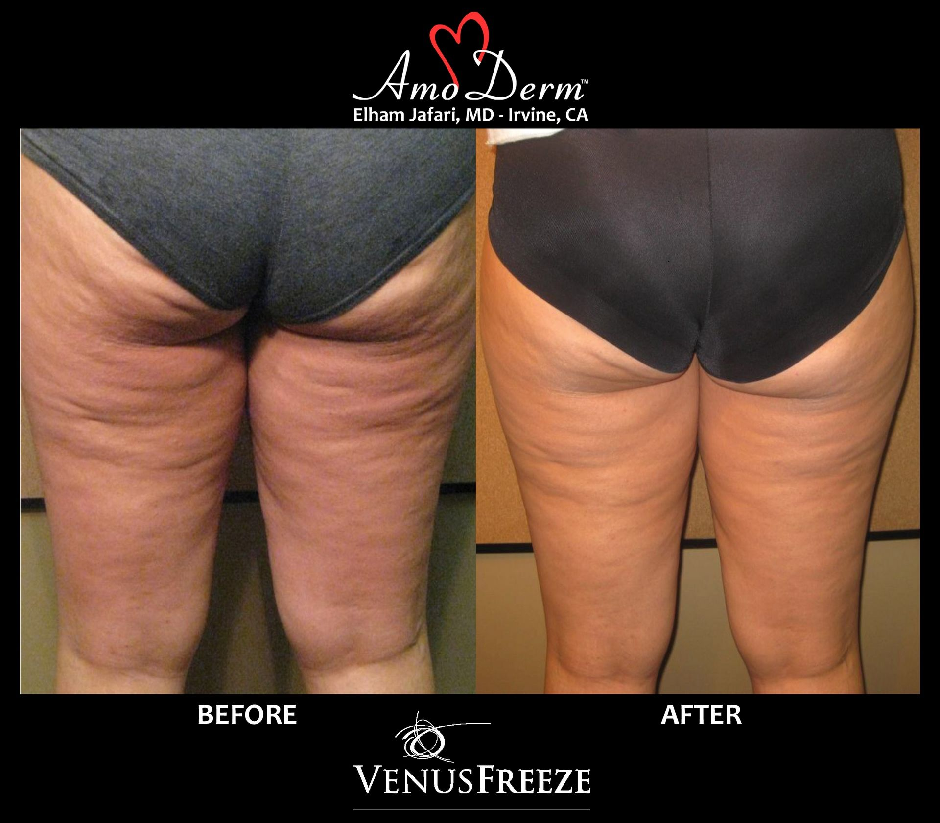 Body Contouring & Skin Tightening with Venus FreezementAmoderm : Before & After Gallery