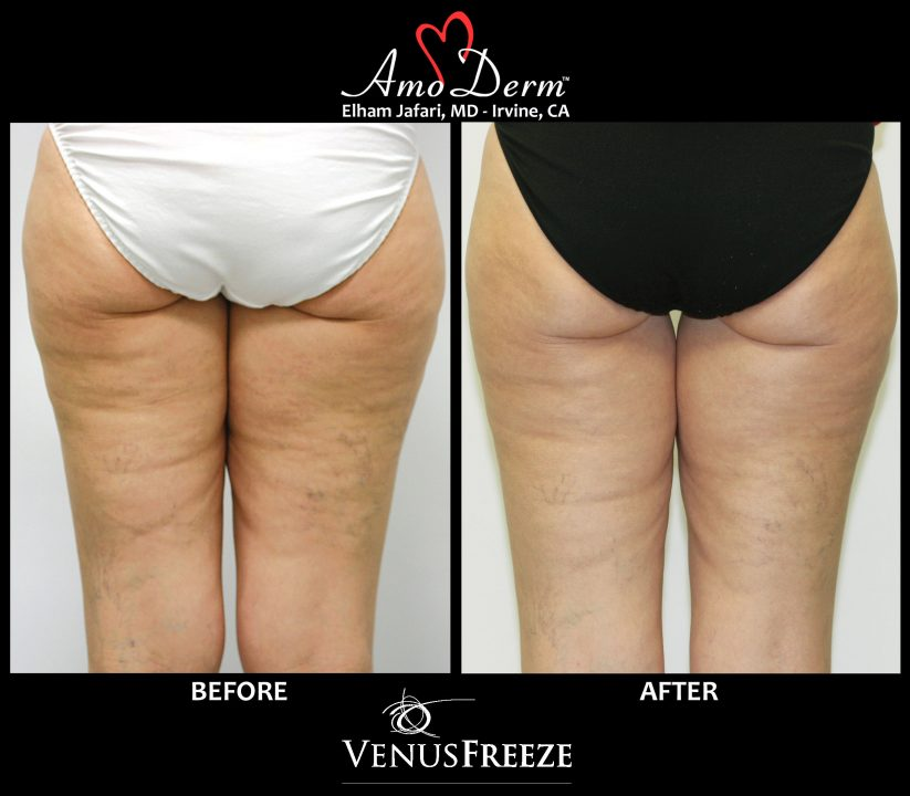 Body Contouring & Cellulite Treatment Amoderm : Before & After Gallery